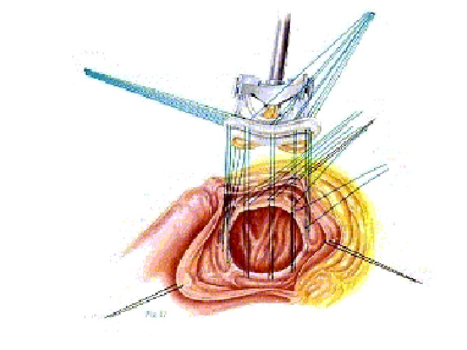 弁膜症の治療