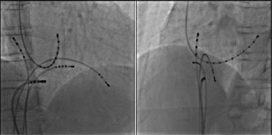 心臓電気生理検査