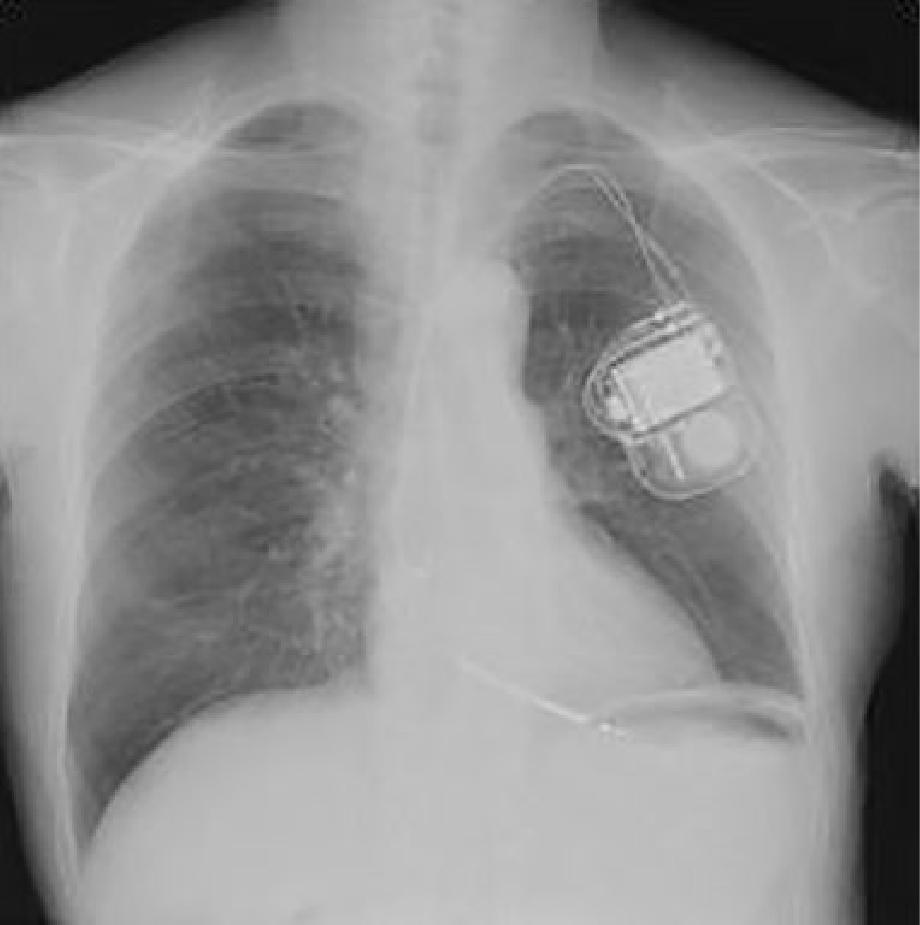5.植込み型除細動器(ICD)