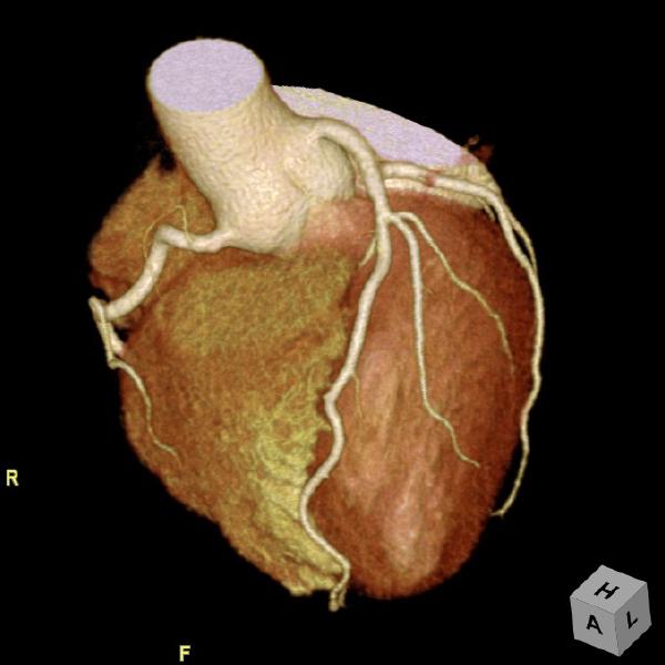 冠動脈3D