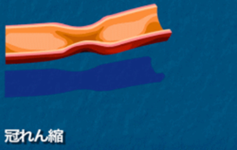 冠動脈のれん縮・けいれん(冠れん縮性狭心症)