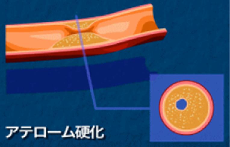 冠動脈の動脈硬化