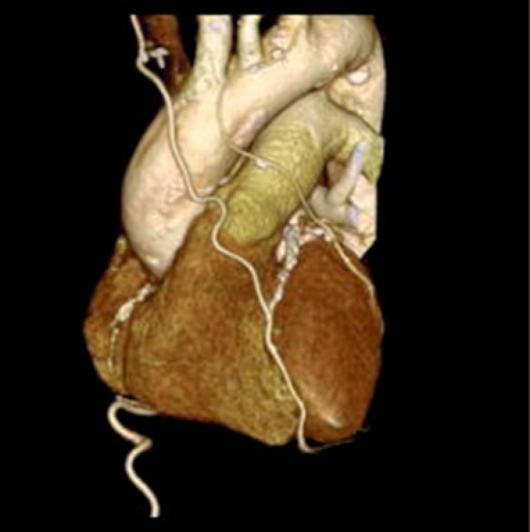左右の内胸動脈と胃の動脈
