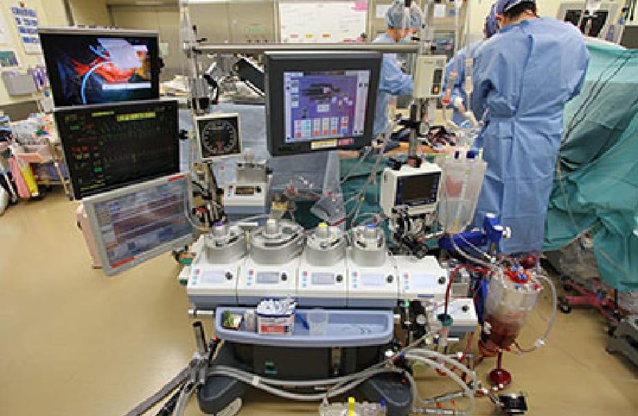 手術室業務(人工心肺装置)